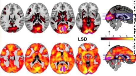 160413035437-effects-of-lsd-on-human-brain-curnow-intv-00003204-large-169