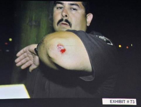 Manuel-Ramos-slight-injury