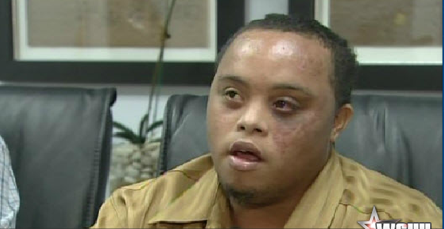 Cops Beat Man with Down Syndrome for Packing Colostomy Bag