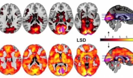 Clinical Trial Suggests Psychedelic Drugs Could Be Used To Treat Depression and Addiction