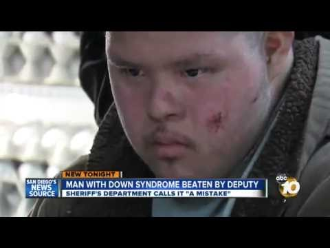 POLICE BRUTALITY Cops Beat & Pepper Spray Innocent Man With Down Syndrome