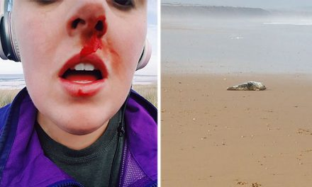 Activist Gets Punched In The Face After Confronting Teens Who Were Torturing A Seal