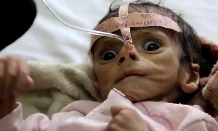Media Silent As Saudi Arabia Devastates Yemen Into Famine
