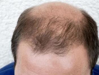 "Study Finds 98 ""Long-Term"" COVID-19 Symptoms Including Baldness"