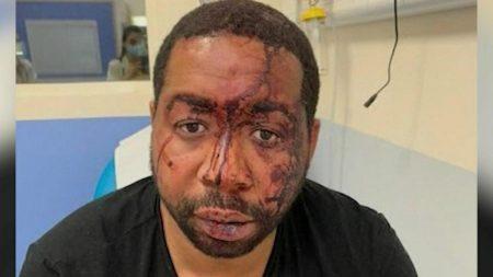 "France's Macron ""Very Shocked"" Over Filmed Police Beating of Black Man for Not Wearing Mask"